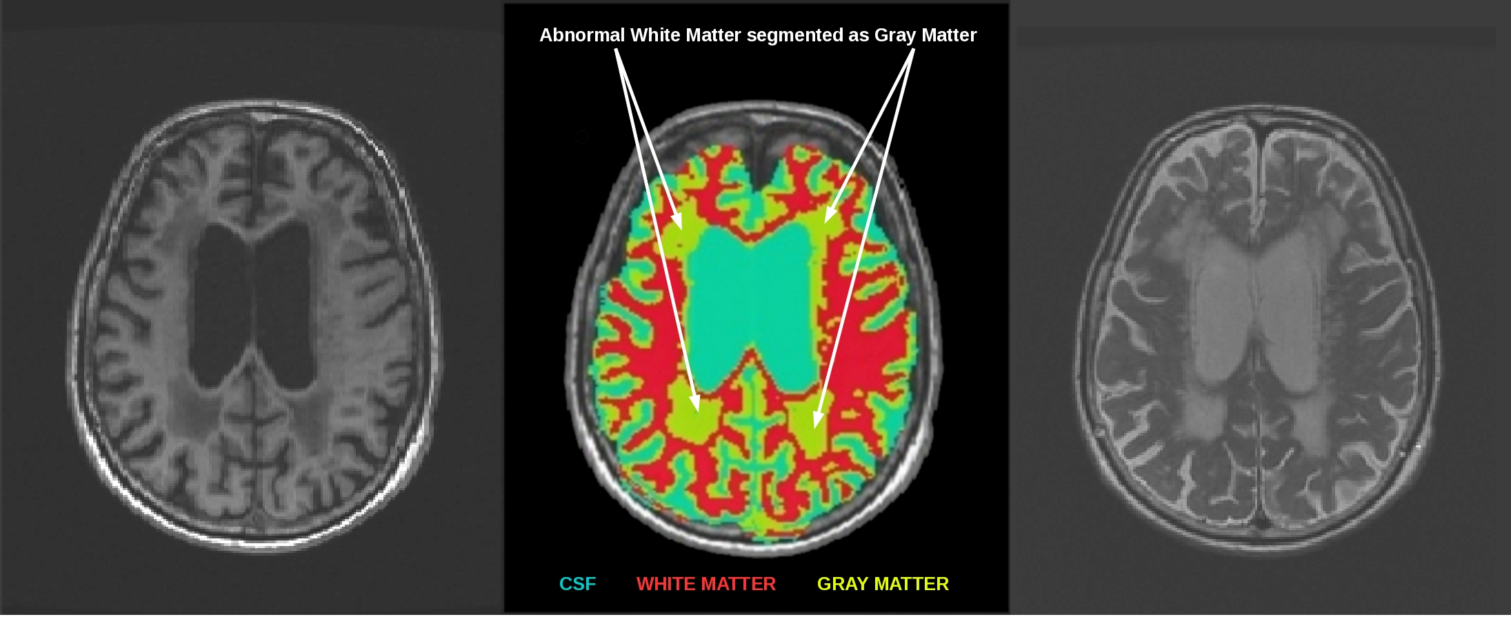 3T How To: Structural MRI Imaging - Center for Functional MRI - UC ...