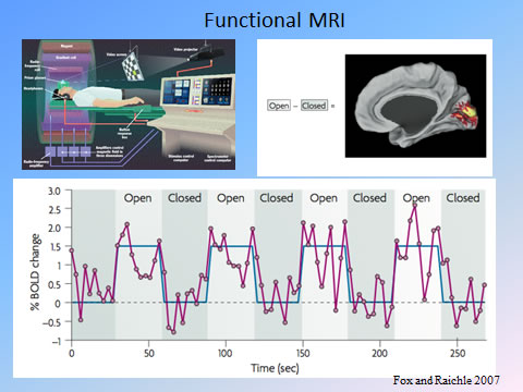 What Is FMRI? - Center for Functional MRI - UC San Diego